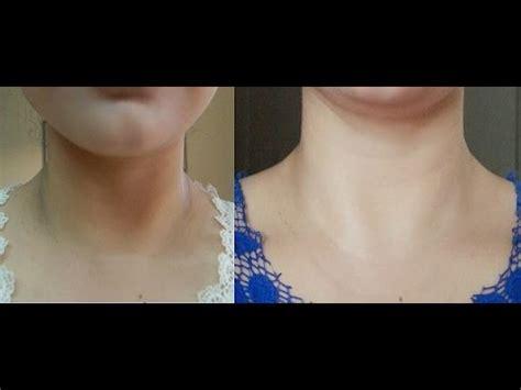 darkening of the skin picture 12