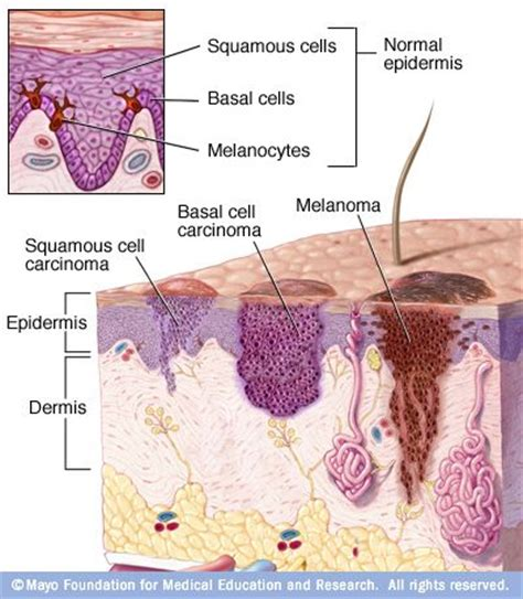 sas cell skin cancer picture 18