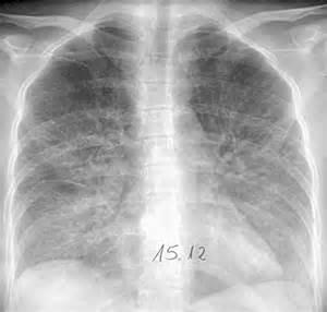 bacterial pneumonia picture 7