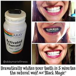 first blush teeth whitener picture 7