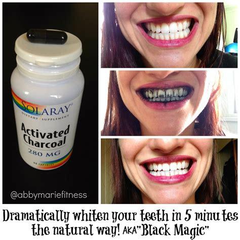 teeth natural whiten whitens whitener whitening picture 2