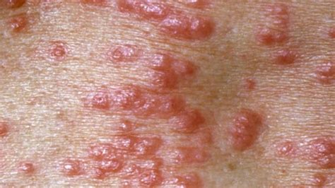 contagious skin diseases picture 1
