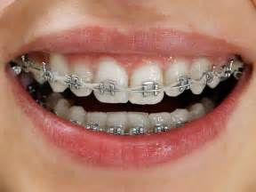 braces teeth picture 5