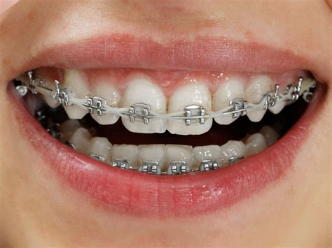 teeth braces picture 5