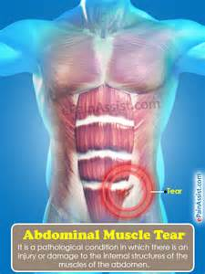 abdominal muscle strain picture 5