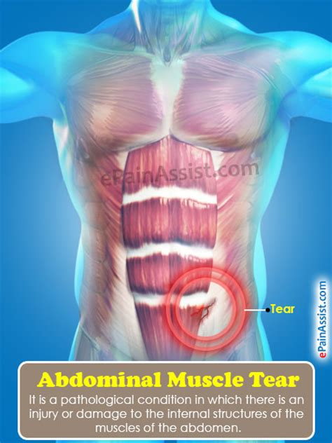 abdominal muscle pull picture 2