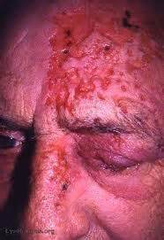 what nerves are affected by herpes picture 5