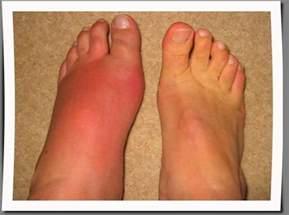 lump in left leg picture 5