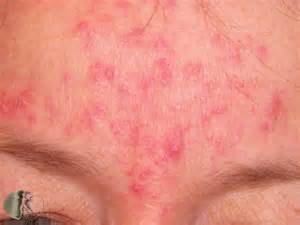 acne rosaea picture 2
