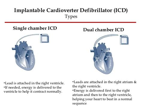 weight gain after pacemaker implant picture 9