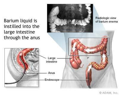 liver and colon cancer picture 7