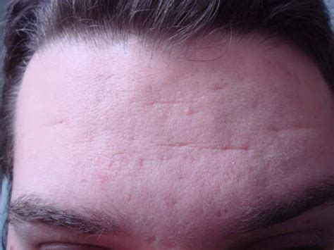 icepick acne scars picture 2
