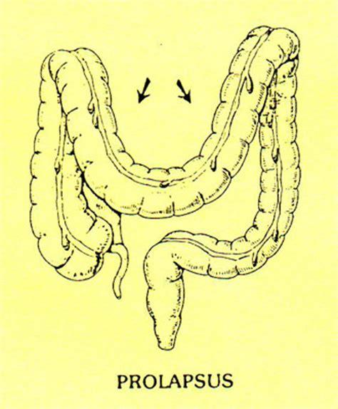 Sptic colon picture 6