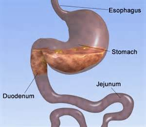 duodenum stomach colon picture 2