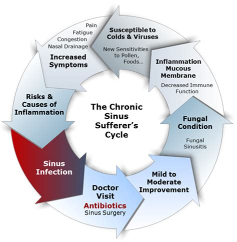chronic sinusitis and fungus and natural treatment picture 10