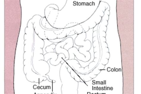 colon cancer in men picture 3