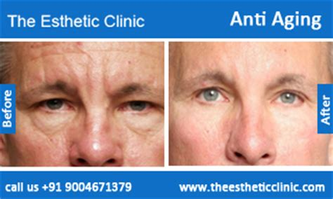 aldara treatment for anti aging picture 6