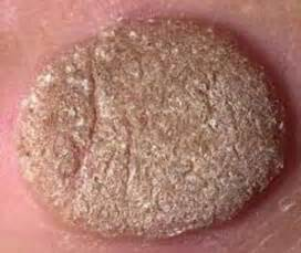 treatment genital warts hard on liver picture 9