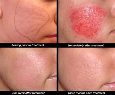 skin care for acne scars picture 13