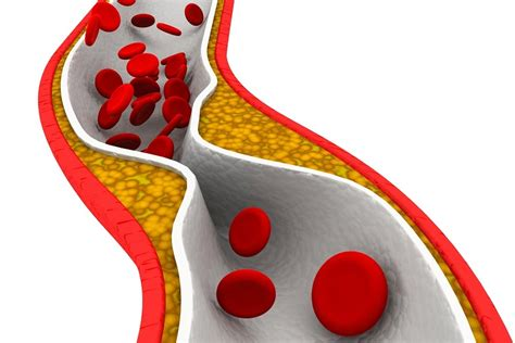 cholesterol statin picture 1