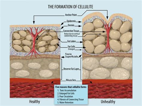 subcision for cellulite in wi. picture 1