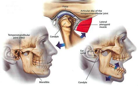 ft lauderdale temporo-mandibular joint pain picture 2