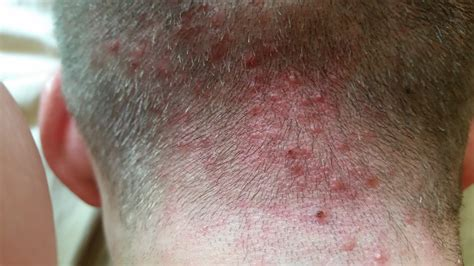 acne scalp picture 5