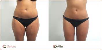 does lipo 6 make you lose your picture 12