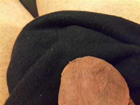 pics of warts under head of cocks picture 9