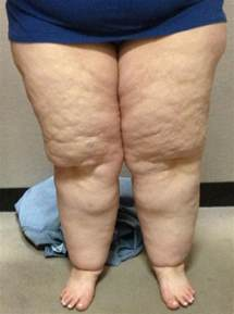 fat ladies with cellulite having picture 3