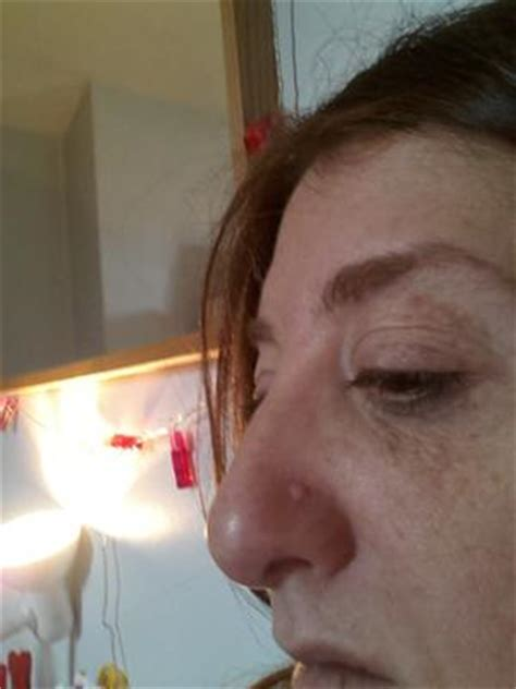 warts in the nose picture 15