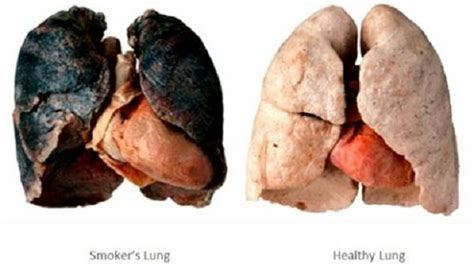 cigar smoke cause cancer lower sperm count picture 14