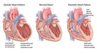 Elevated blood pressure causing death after being administrated picture 7