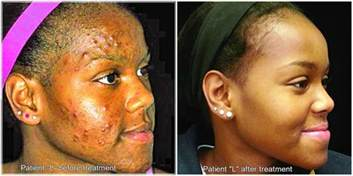chemical l in the treatment of acne picture 1