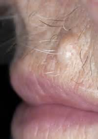 information on warts picture 10