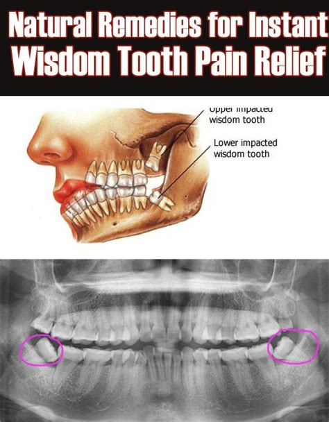 wisdom tooth pain relief picture 7