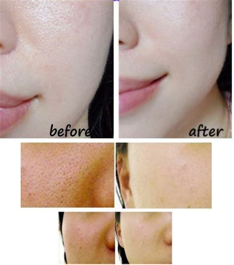 glutathione use in acne treatment picture 7