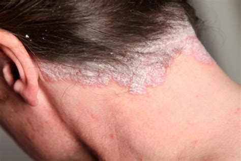 drug use and acne picture 13