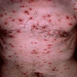 veneral herpes picture 6