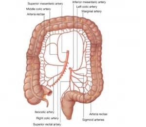 nonrotation of bowel and small mesenteric artery picture 15