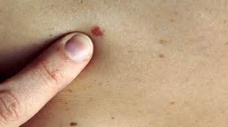melanosis of the skin picture 15