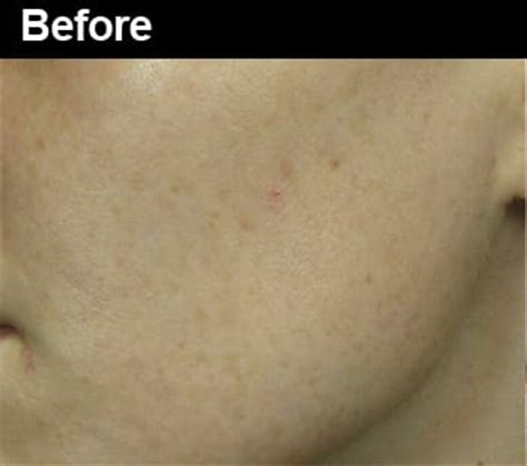 fractal skin procedure picture 14