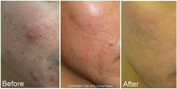 fractal lazer for skin picture 5
