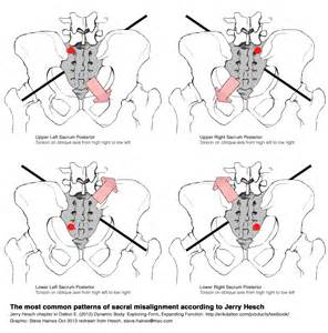 car accident and si joint pain picture 4