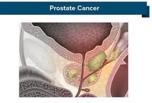 Prostate adenocarcinoma picture 11