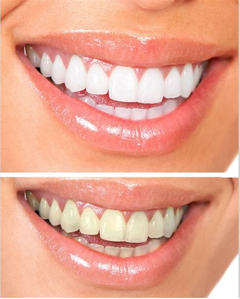 whiten teeth with gly-oxide picture 18