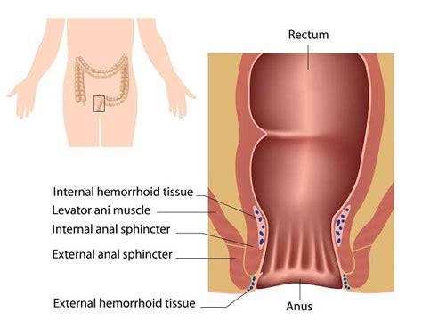 beyond relief for veins and hemorrhoid care by picture 4