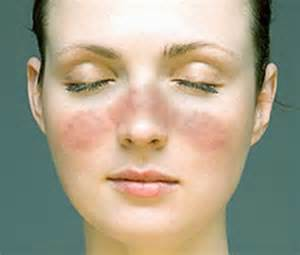 lip swelling face vasodilation rash finger swelling weight loss low fever picture 1