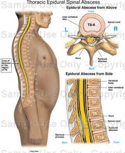 epidural for digestive system picture 5