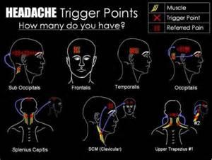 headache pain relief picture 5